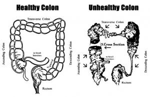 kesihatan usus dengan herblax