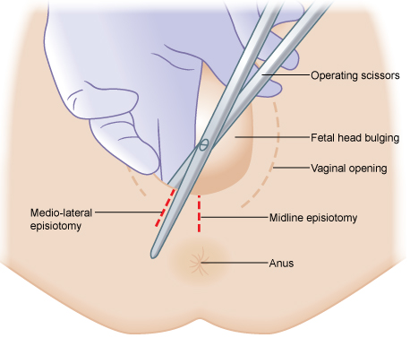 50_episiotomy
