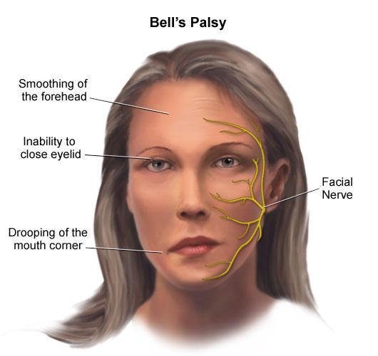 ubat bell palsy