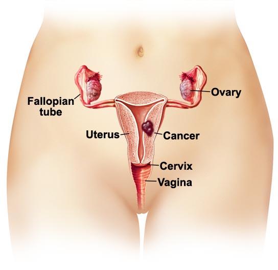 ubat kanser rahim