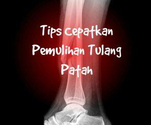 rawatan tulang patah